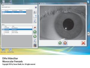 Monocular VideoStar Frenzel